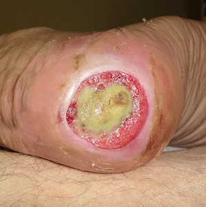 Baby Bed Sores